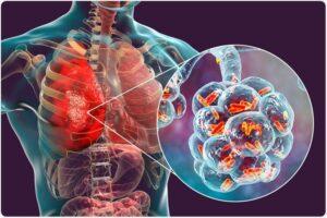 मानवी रोग: रोगांचे वर्गीकरण आणि रोगांचे कारणे | Classification of Diseases and Causes of Diseases_210.1