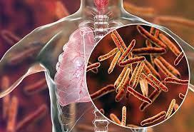 मानवी रोग: रोगांचे वर्गीकरण आणि रोगांचे कारणे | Classification of Diseases and Causes of Diseases_160.1
