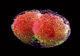 मानवी रोग: रोगांचे वर्गीकरण आणि रोगांचे कारणे | Classification of Diseases and Causes of Diseases_60.1