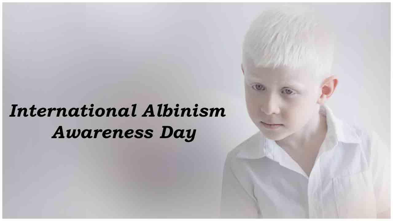 International Albinism Awareness Day: 13 June | சர்வதேச அல்பினிசம் விழிப்புணர்வு நாள்: 13 ஜூன் |_40.1