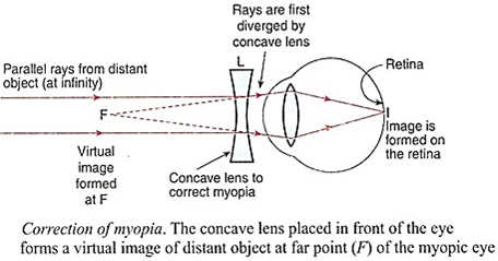Human Eye: Download Science Study Notes FREE PDF For REET Exam_60.1